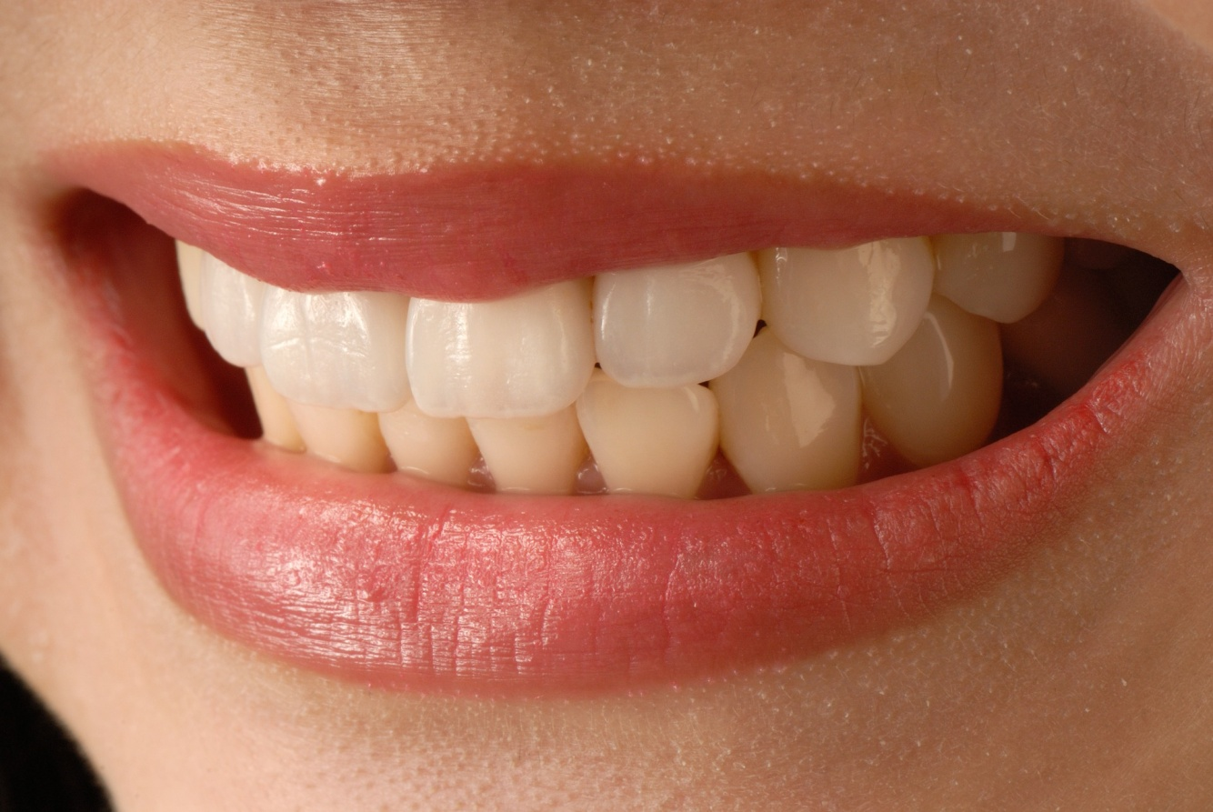 Dental Veneers: The Secret to Pearly White Smiles