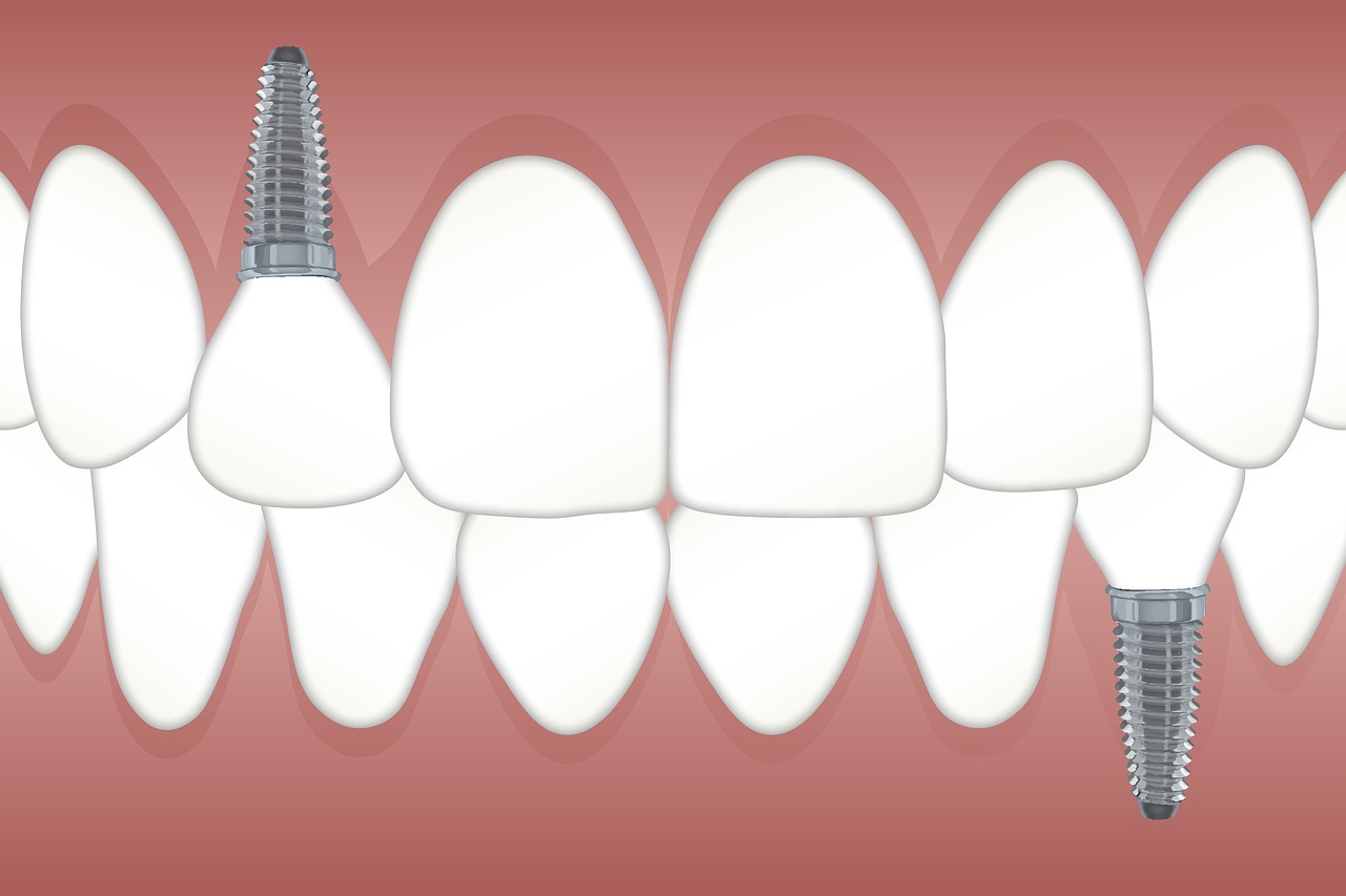 Dental Implants: Giving You a Semi-Permanent Complete Smile