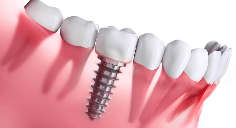 3 Reasons Why Makati is the Best Place to Look for Dental Implants